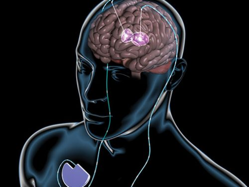 Huntington's Disease – Could It Be an inherited Disorder?
