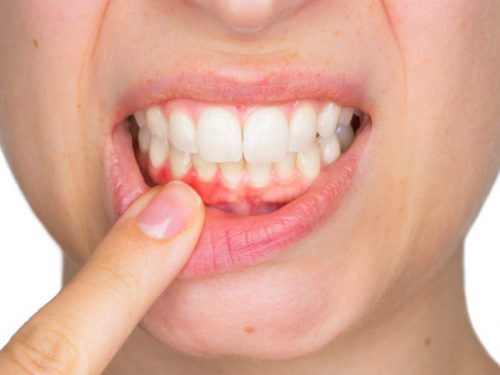 Periodontal Disease: Signs and symptoms, Treatment & Prevention